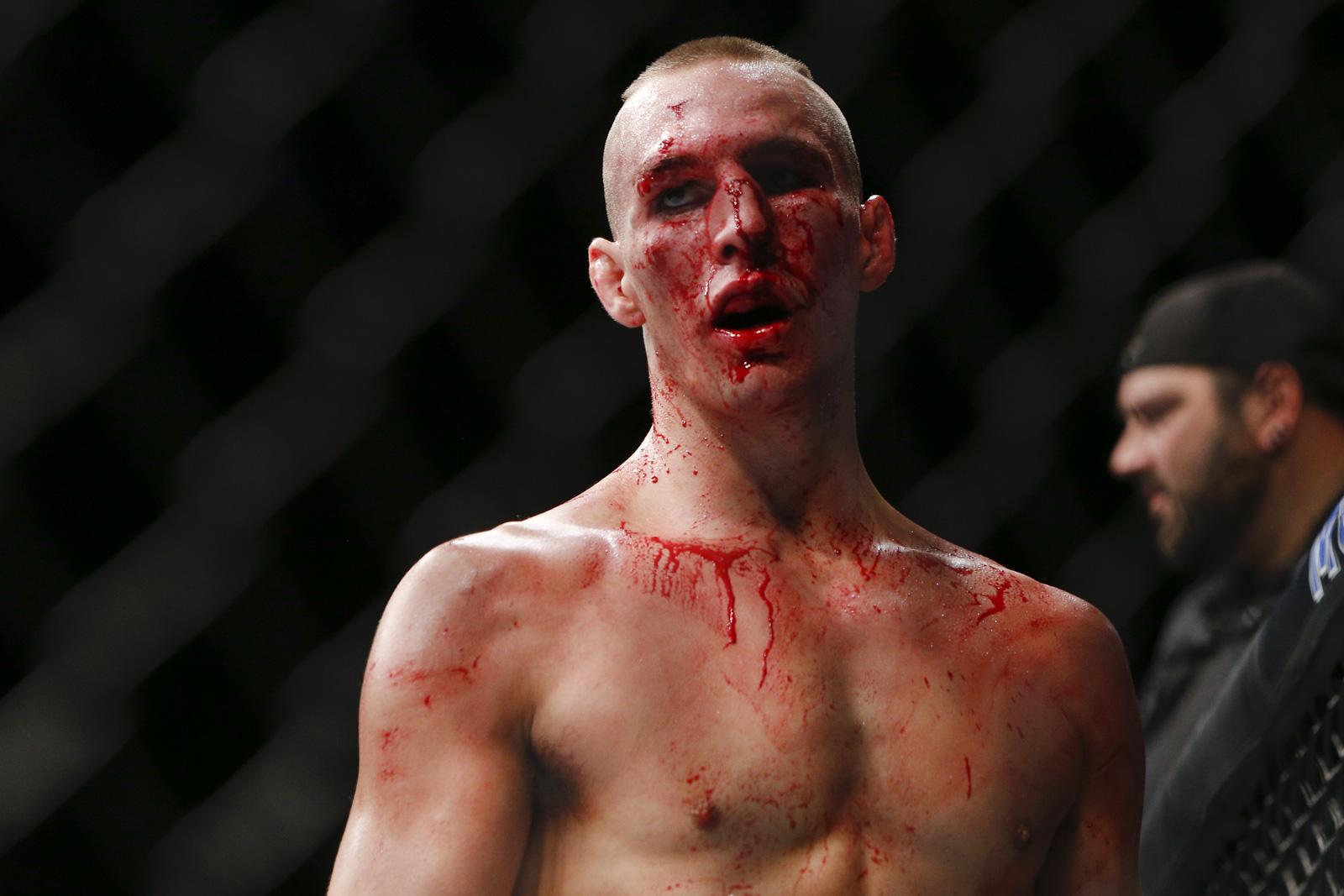 UFC 189 photos