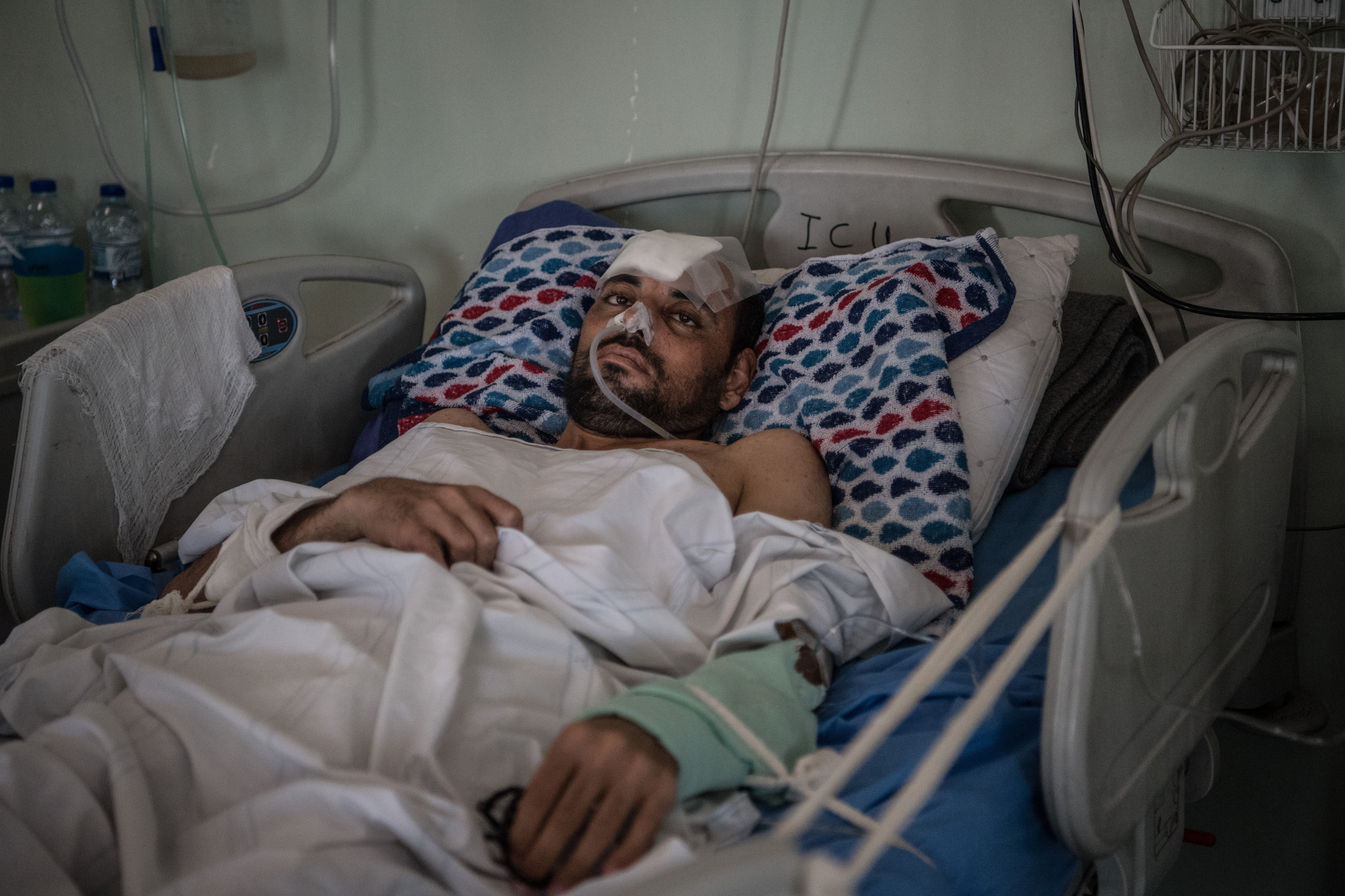 An Iraqi man received serious injuries after an April 2017 airstrike in Mosul, Iraq.