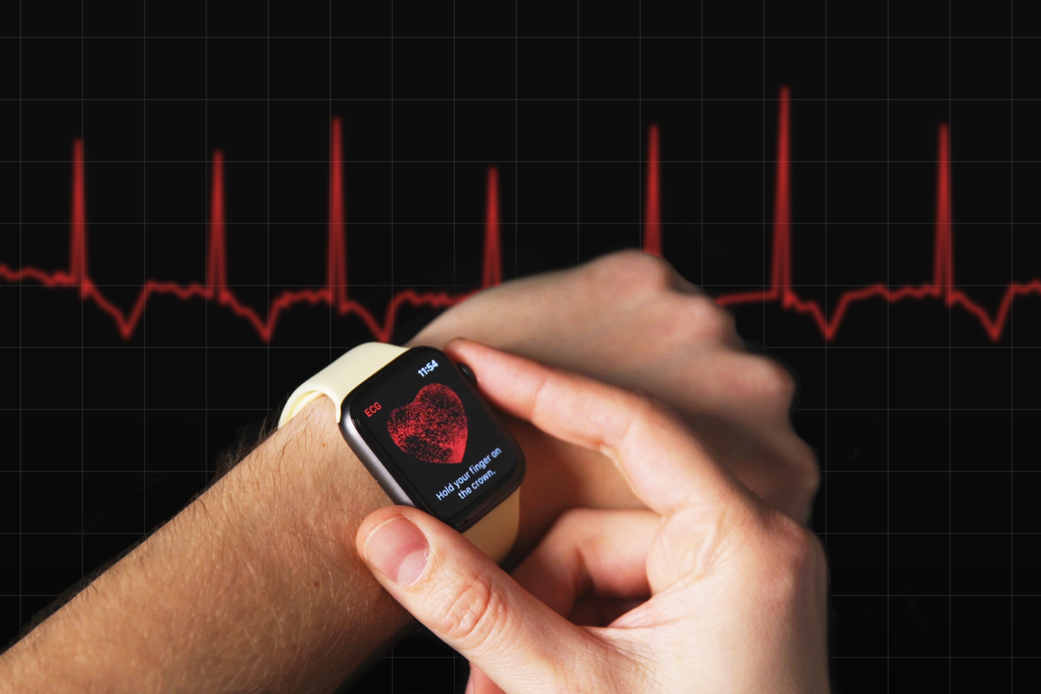 Why doctors are worried about the Apple Watch EKG - The Verge
