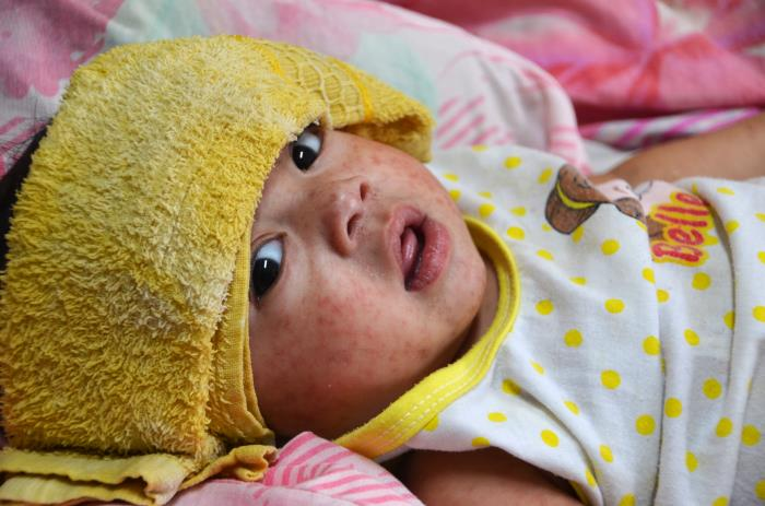 Measles is known for causing rashes — like the one affecting this child in the Philippines in 2014.