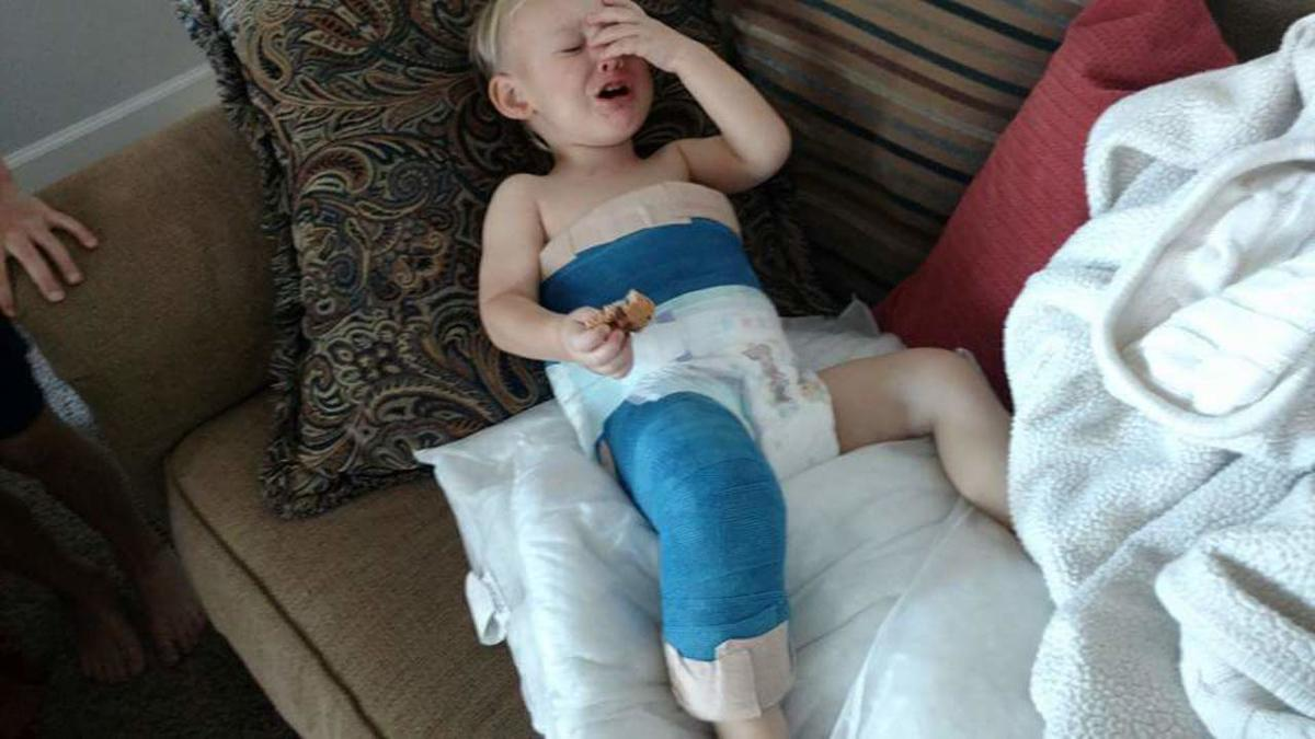 Arianne Brown's 2-year-old son, Audi, sits on the couch after breaking his femur.