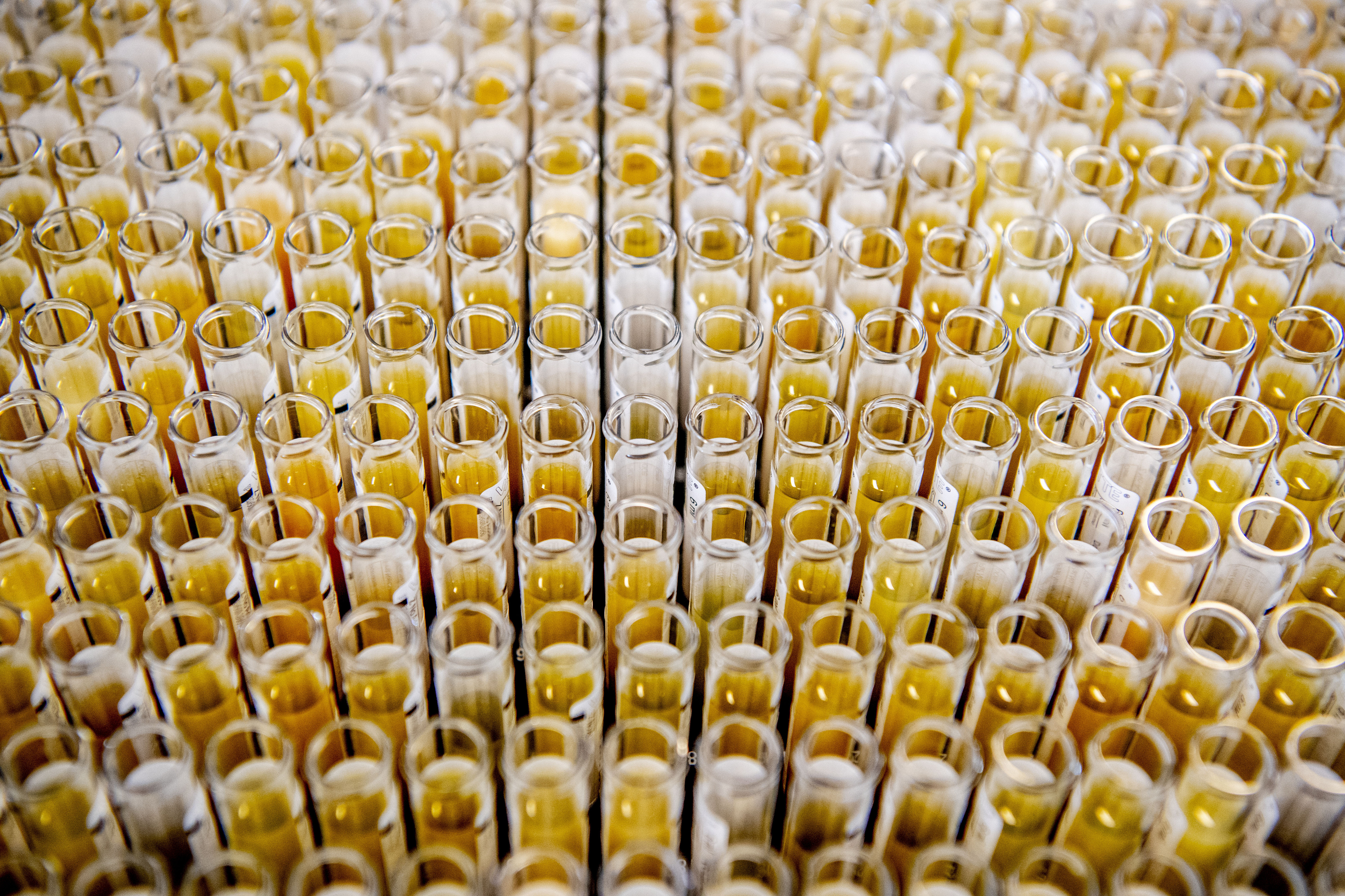 Test tubes with blood samples seen at the lab center.