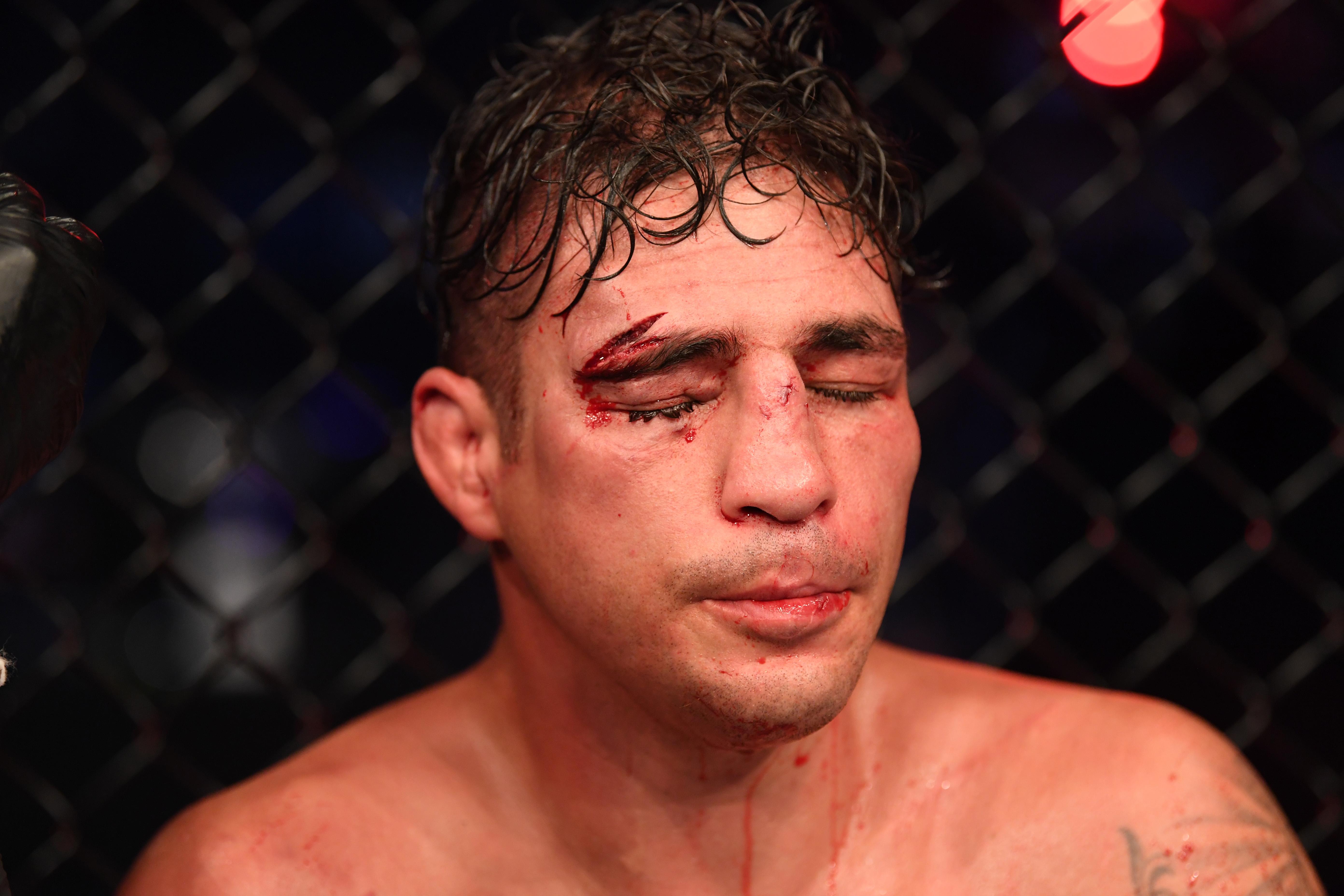 UFC 253 Sanchez v Matthews