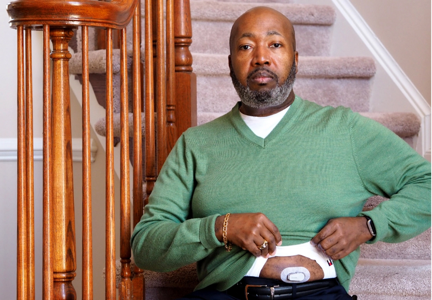 Trevis Hall of Fort Washington, Maryland, credits a continuous glucose monitor with helping him get his diabetes under control. Makers of the device say the instant feedback provides a way to motivate healthier eating and exercise. But experts point say that the few studies of the monitors show conflicting results.