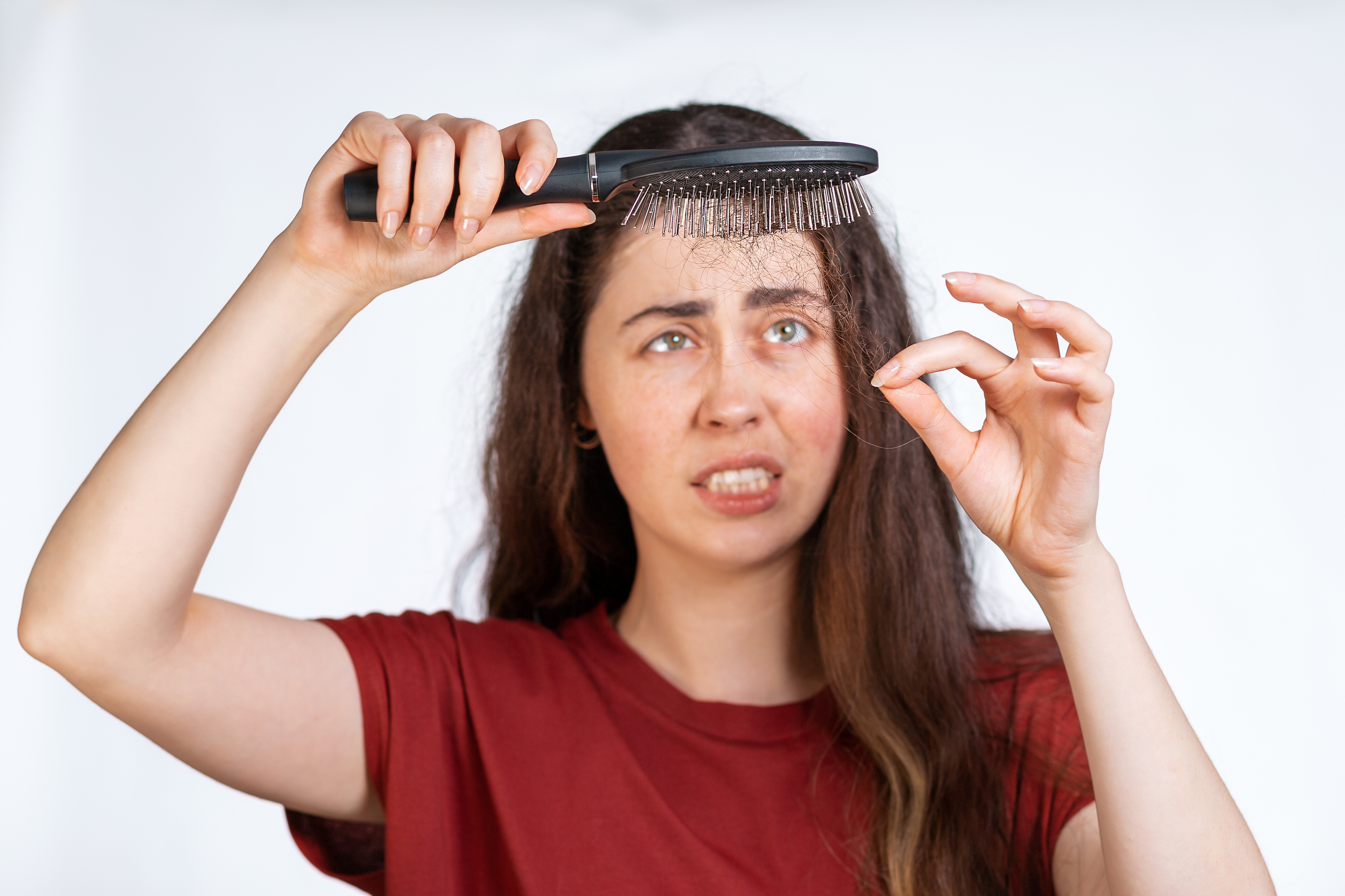 People often don't connect their hair loss with stress since it usually doesn't happen right away, one expert explains.