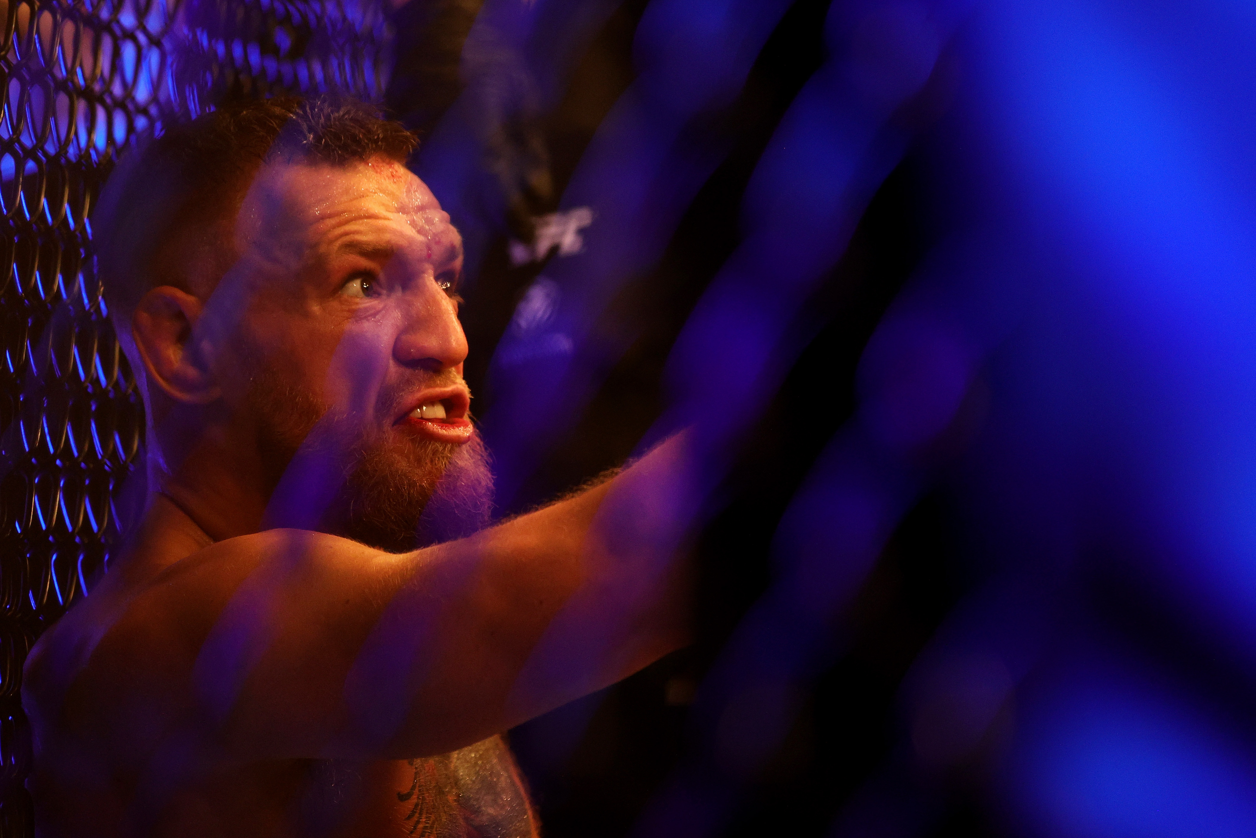 Conor McGregor berates Dustin Poirier after injuring his ankle at UFC 264 in Vegas.